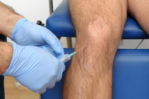 Infiltratie intraarticulara genunchi